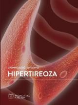 Hipertireoza
