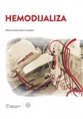 Hemodijaliza