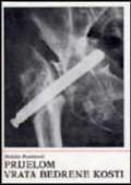 Prijelom vrata bedrene kosti